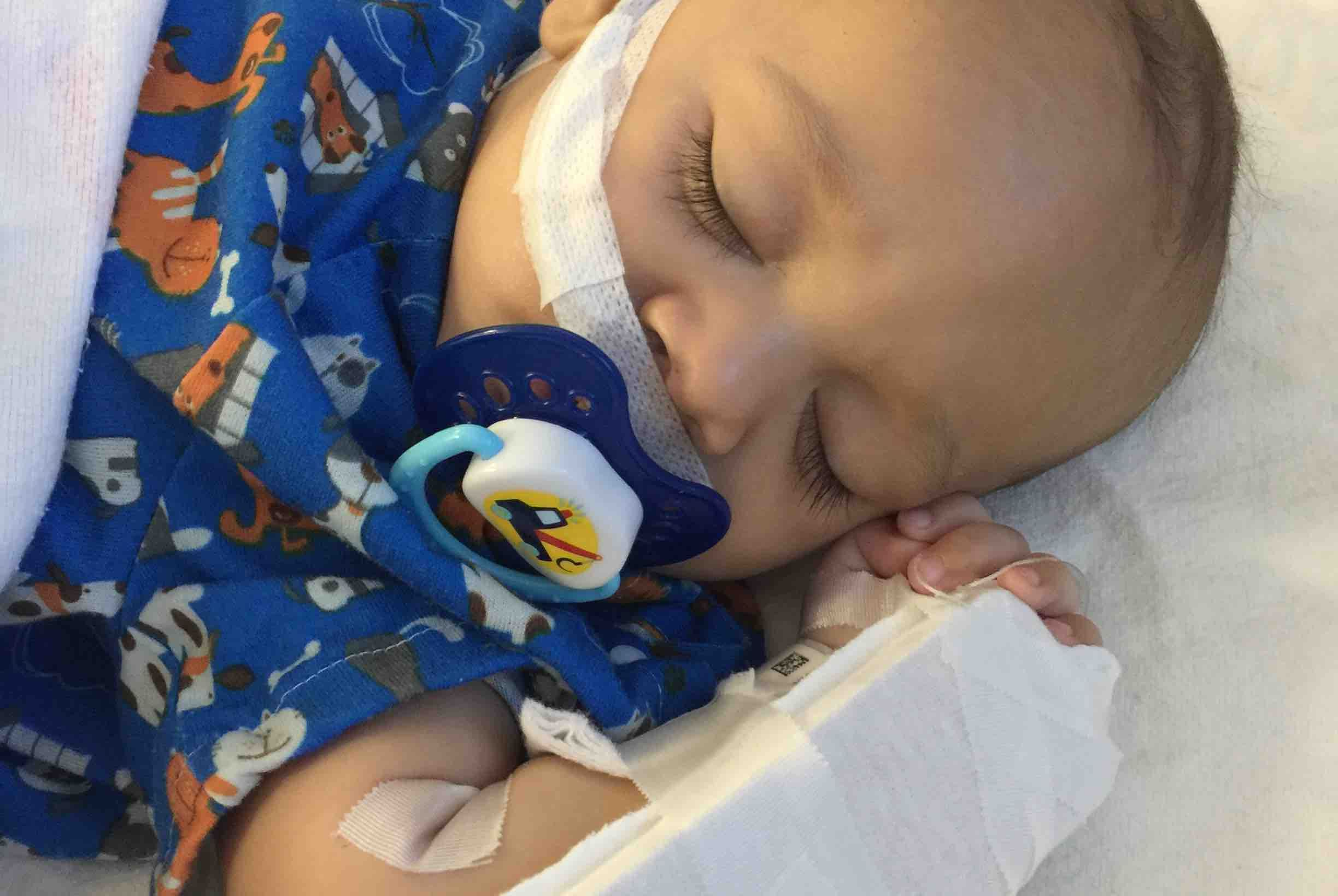 Hi guys i have a little boy named jace. Jace is 6 months old and was born a month and a half early. He was taken from me and moved to a hospital 2 hours away at birth where they figured out he has Hirschsprung's disease. He has already had 2 surgeries by the time he was 4 months old. He is a Hirs...