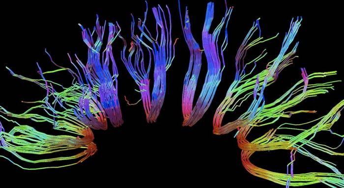 © Rainer Goebel  Kabelsalat  Forscher rekonstruieren in solchen Computerdarstellungen den Verlauf von Nervenbahnen zwischen verschiedenen Hirnarealen. Die bunten Stränge im Bild zeigen die Faserverläufe in einem Bereich des Balkens, der die beiden Hirnhälften miteinander verbindet.  Spectrum.de