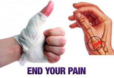 Pain in hand thumb
