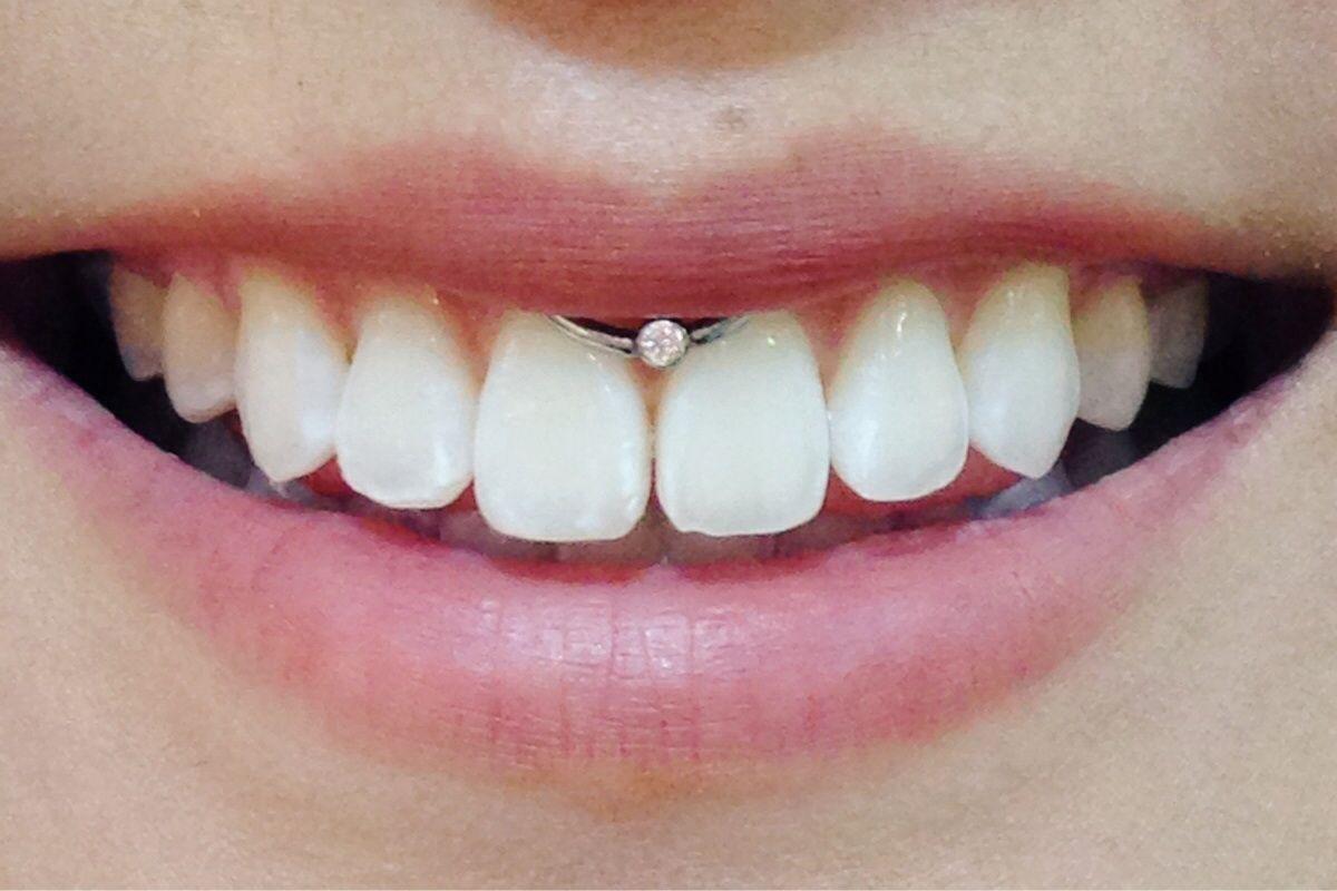 Smiley Piercing Jewelry Smiley Body Jewellery Piercebody