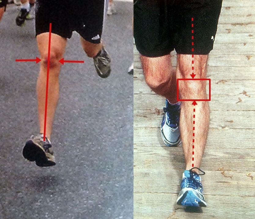 How does heel striking lead to runners knee? The major contributor ...