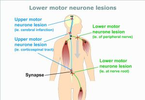 What is upper and lower motor neurone disease treatment for What is motor neuron disease caused by