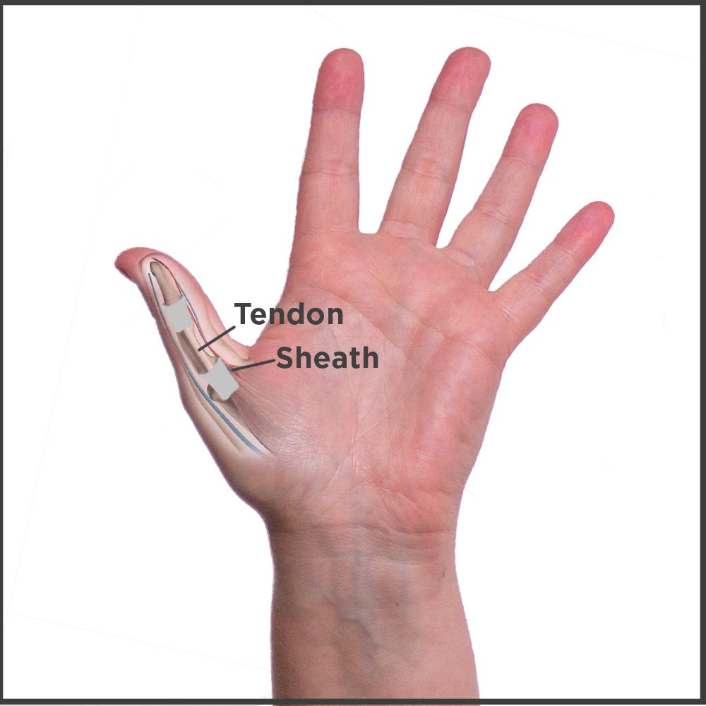 What is Trigger Thumb?   Cures/Benefits   Pinterest   Trigger finger ...