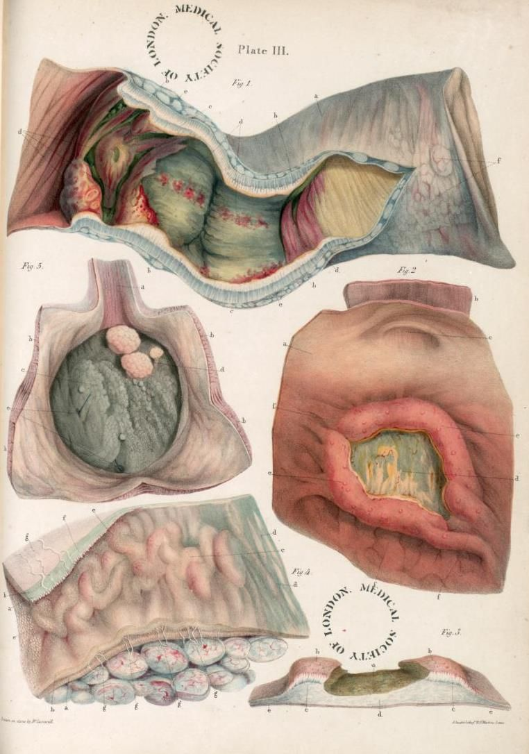 Sir Robert Carswell, plate from Pathological Anatomy, 1838   I ...