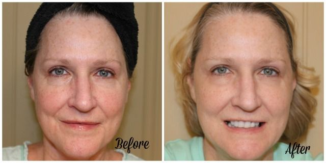 Neutrogena rapid wrinkle repair before and after