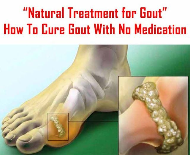 [Home Remedy Tips] How To Cure Gout With No Medication #natural #treatment #gout #uricacid…