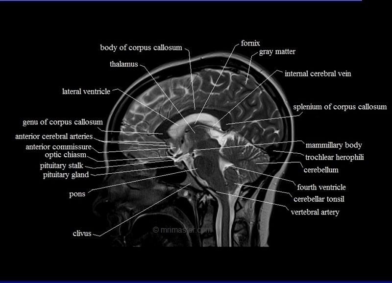 free MRI brain cross sectional anatomy | Work | Pinterest | Anatomy ...