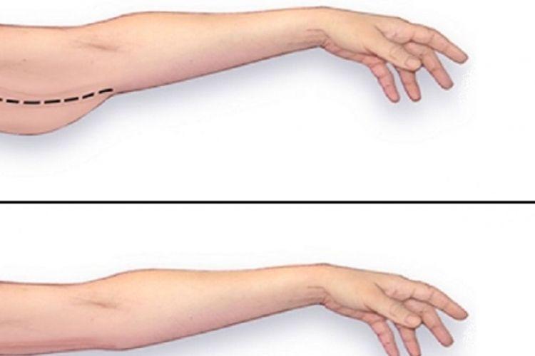 Comment facilement perdre le gras de bras!  88c0fddd87f