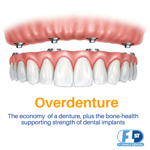 Best teeth implant options