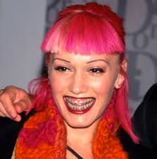90s Girl Gwen Stefani Pink Hair Fun Fur Celebrity Teeth Celebrities With Braces Celebrity Smiles