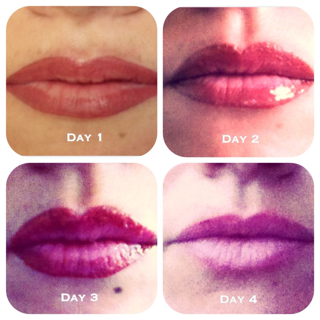 Healing process of a semi permanent lip blush 💋 Healing