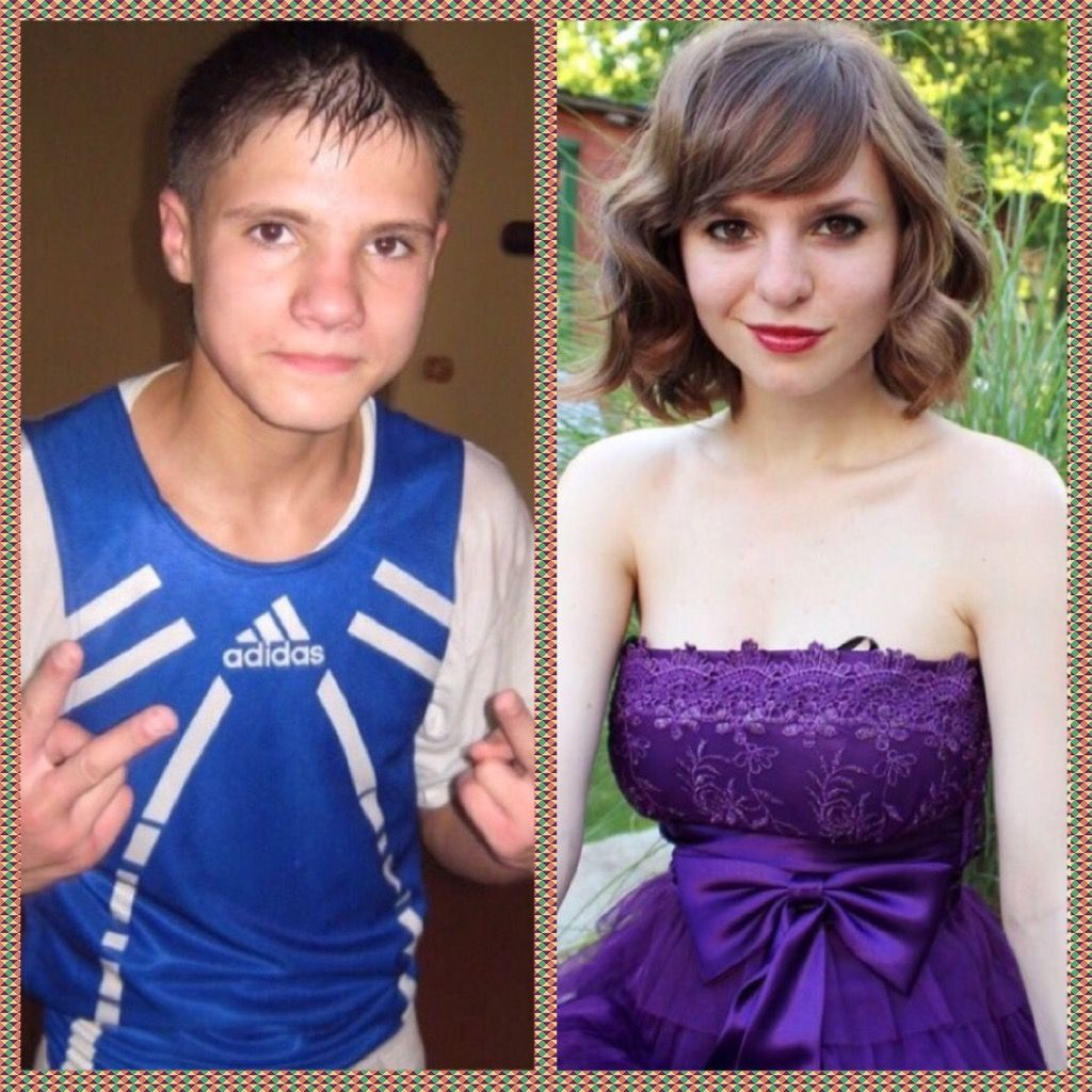 Transsexual transition pictures