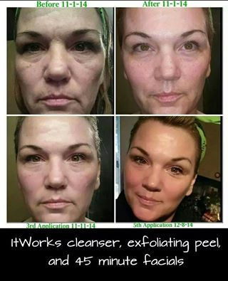 Awesome Results With It Works Skin Care It Works Cleanser Exfoliating Peel And It Works Facial This Is Am It Works Facials Skin Peeling On Face Peeling Skin