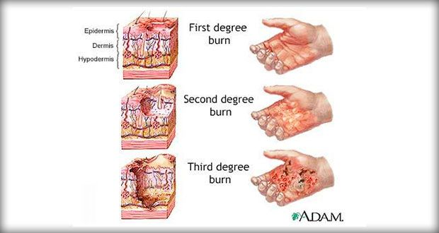 Burn Injury | Nursing | Nursing care plan, Health remedies ...