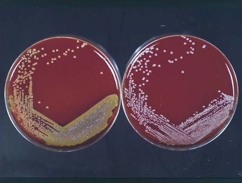 Pin On Staphylococcus Aureus