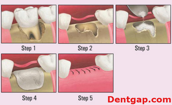 Pin By Health Pugs And Faith With C On Denture Journey Tooth Extraction Aftercare Tooth Extraction Tooth Extraction Care