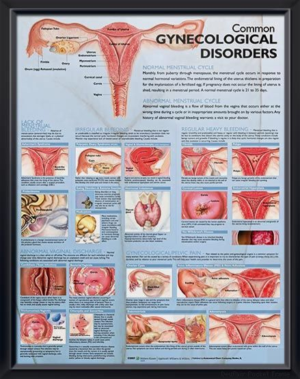 Common Gynecological Disorders Chart 20x26 Ob Gyn