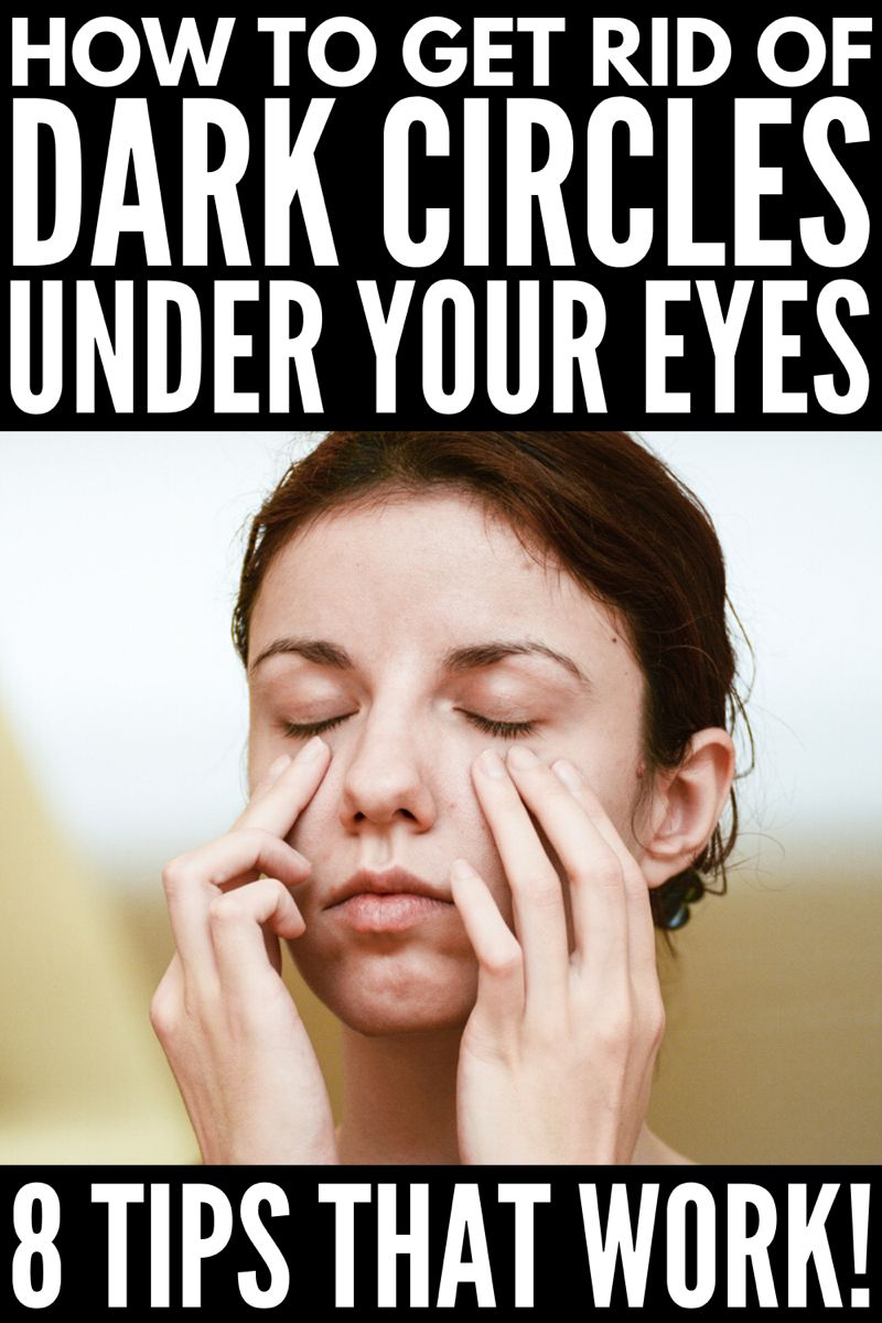 How to Get Rid of Dark Circles Under Your Eyes: 8 Tips That Work