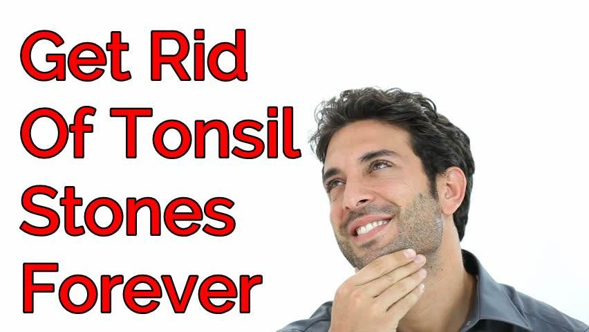 How To Get Rid Of Tonsil Stones At Home Fast
