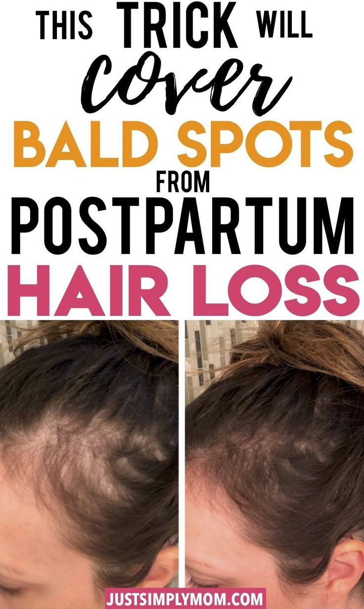 How To Quickly Cover Bald Spots During Postpartum Hair