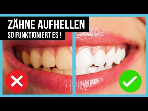 Zähne Aufhellen Weiße Zähne mit diesen 5 Methoden