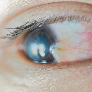 What exactly is a pterygium? Learn more on the Rinkov Blog!