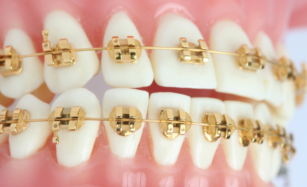 Gold Braces | Different Types of Braces | Gold braces, Teeth