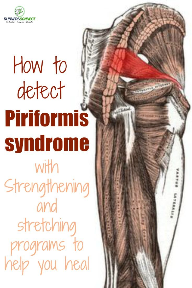 Piriformis Syndrome: How to detect it and strengthening and ...