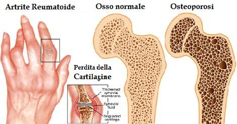Artrite psoriasica, sintomi e cura