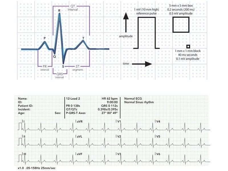 ECG Strip Medical Medical, Health care, Cardio
