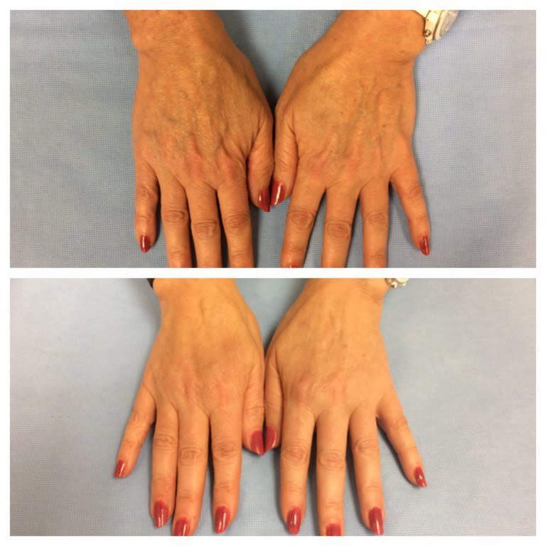 Filler in your hands make the hands look more youthful