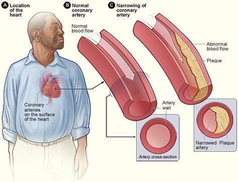 Coronary heart disease diagram fitness pinterest heart disease coronary heart disease diagram ccuart Choice Image