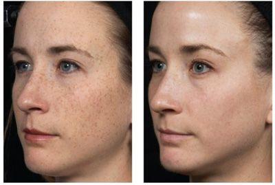 Fraxel Before And After Photos Mi Skin Dermatology Center Laser Skin Skin Resurfacing Laser Treatment