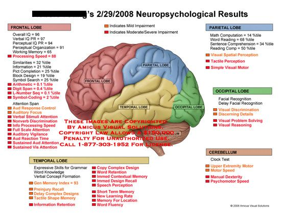 Amicus Medical Injury Brain Chart Neuropsychological Evaluation
