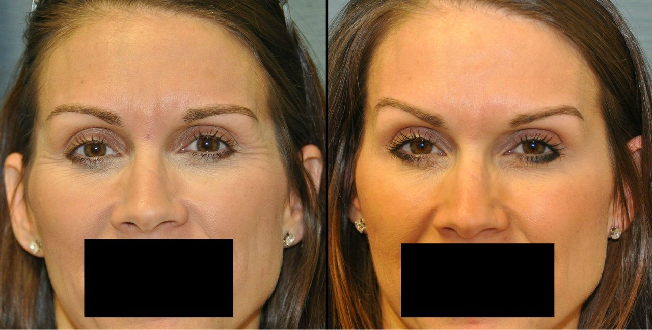 Before and After of botox injections Botox fillers