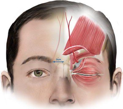 Image result for supratrochlear artery landmark | work ...
