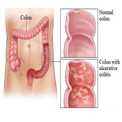 Top 12 Herbal Remedies for Ulcerative Colitis