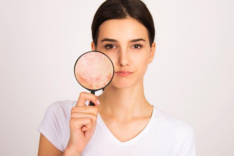 ماسكات لتفتيح البشرة الدهنية وإزالة الحبوب مجلة سيدتي تبحث المرأة بشكل دائم عن خلطات طبيعية لـ تفتيح البشرة الدهنية وإزالة الحبوب إذ تسعى Tennis Racket Lens