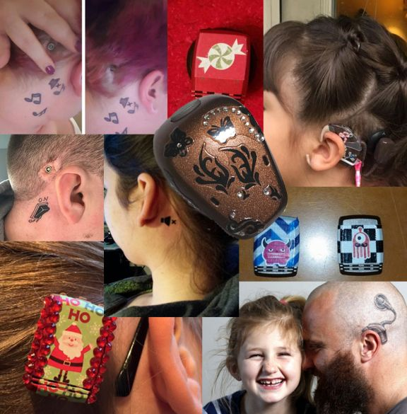 Pin On Hearing Technology