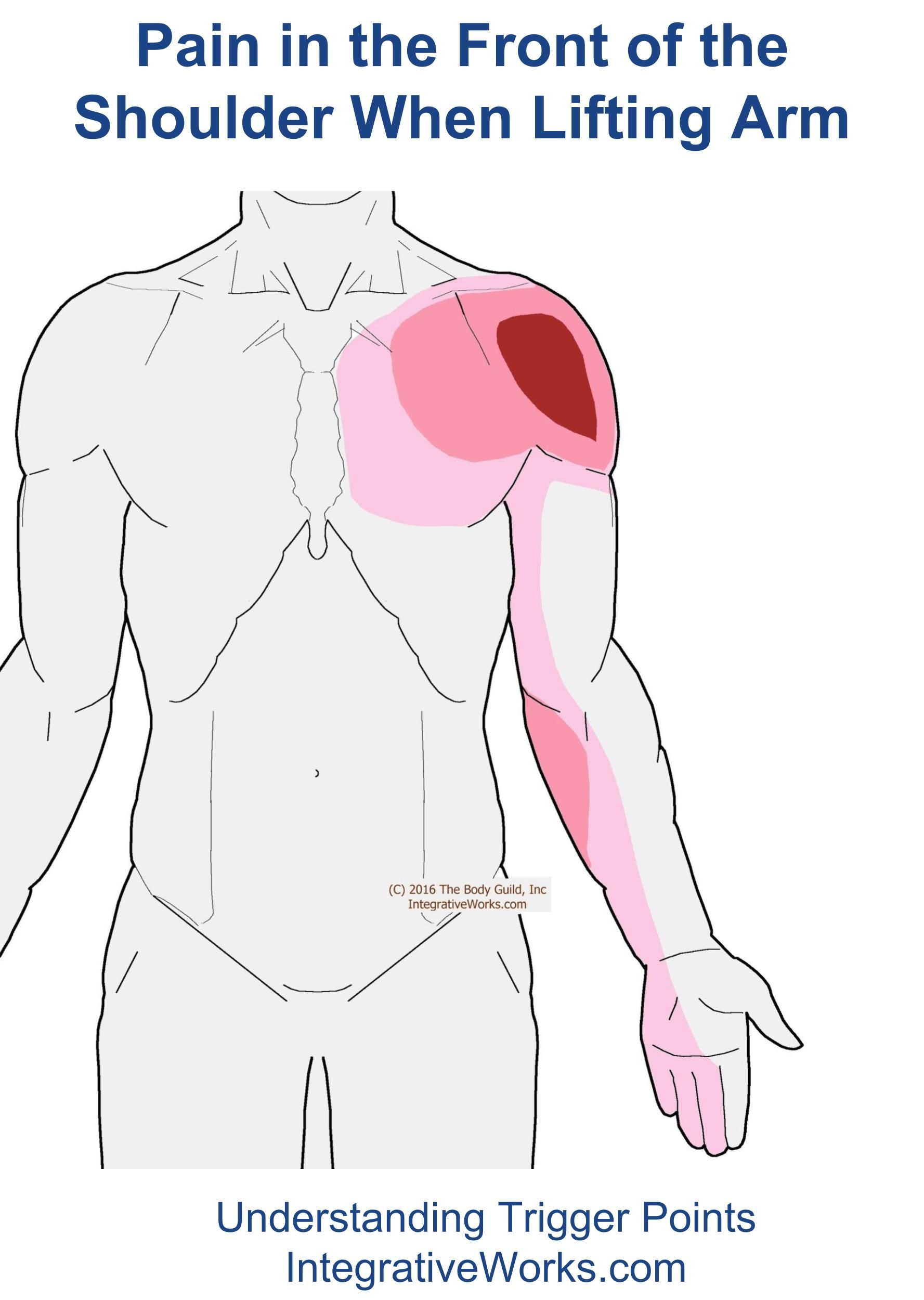 Trigger Points – Pain in the Front of Shoulder When Lifting Arm ...