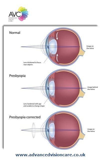 Normal Eyes Vs Eyes That Suffer From Presbyopia More At Www