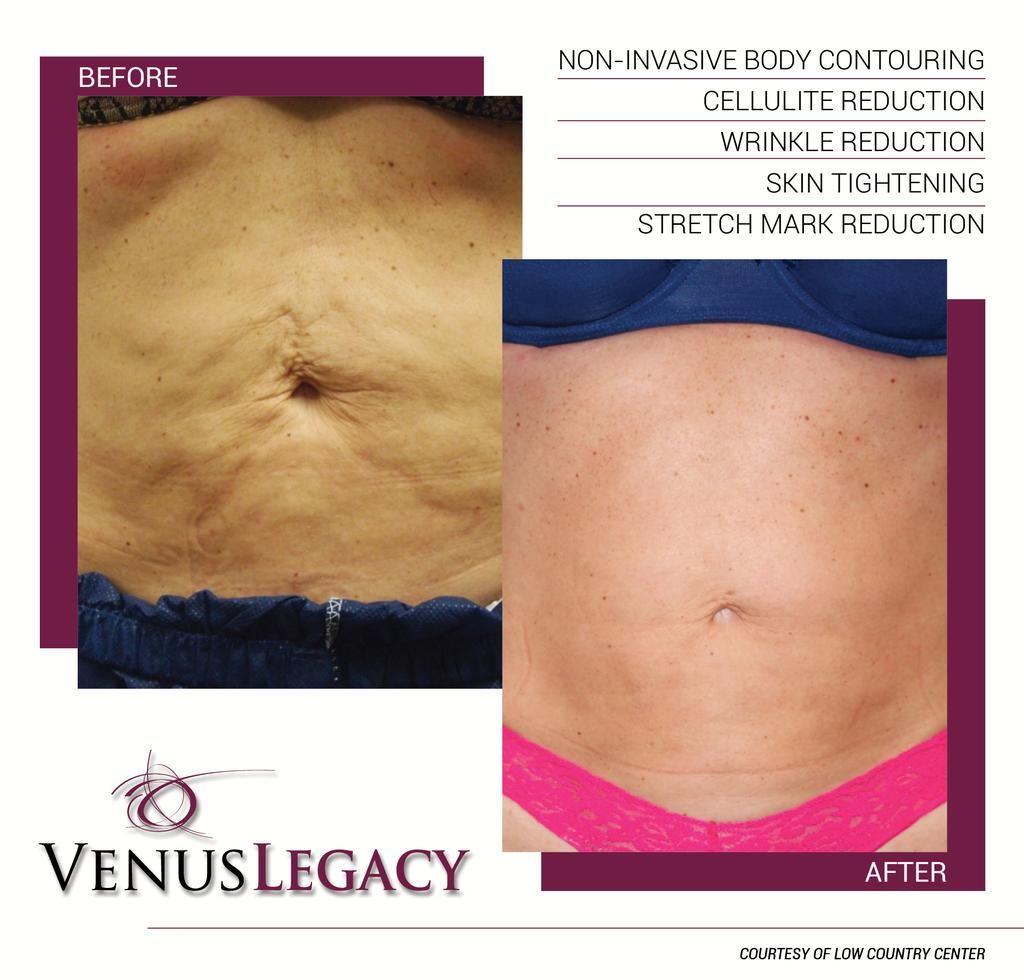 Venus Legacy Venuslegacy Laser Skin Tightening Skin Tightening Stomach Skin Tightening Tummy