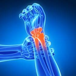 What Is Arthritis Can It Be Reversed Arthritis Best