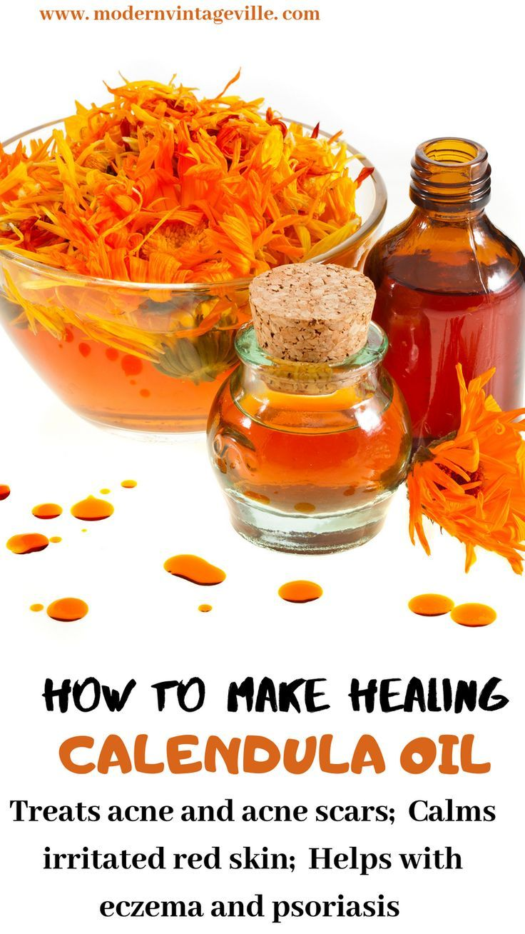 Amazing Healing Benefits of Calendula for Skin and Hair