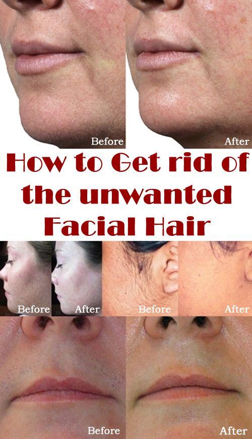 Hvordan at slippe af med det uønskede ansigtshår Kiss Make-5051