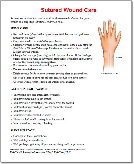 Sutured Wound Care Patient Education Document  Wound Care