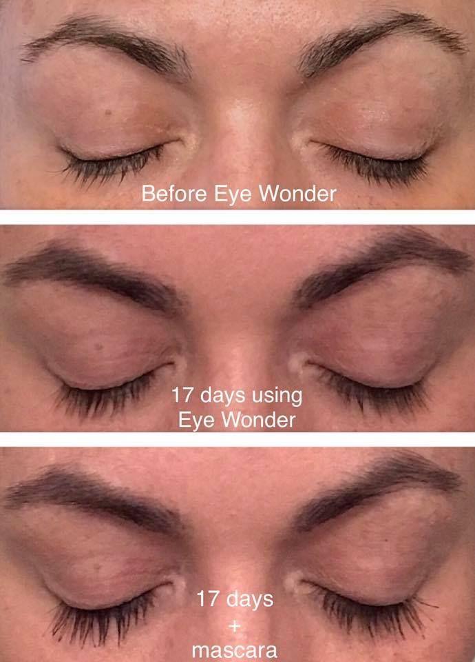 Monat Testimonial Lindsey S Experience Using Eye Wonder After