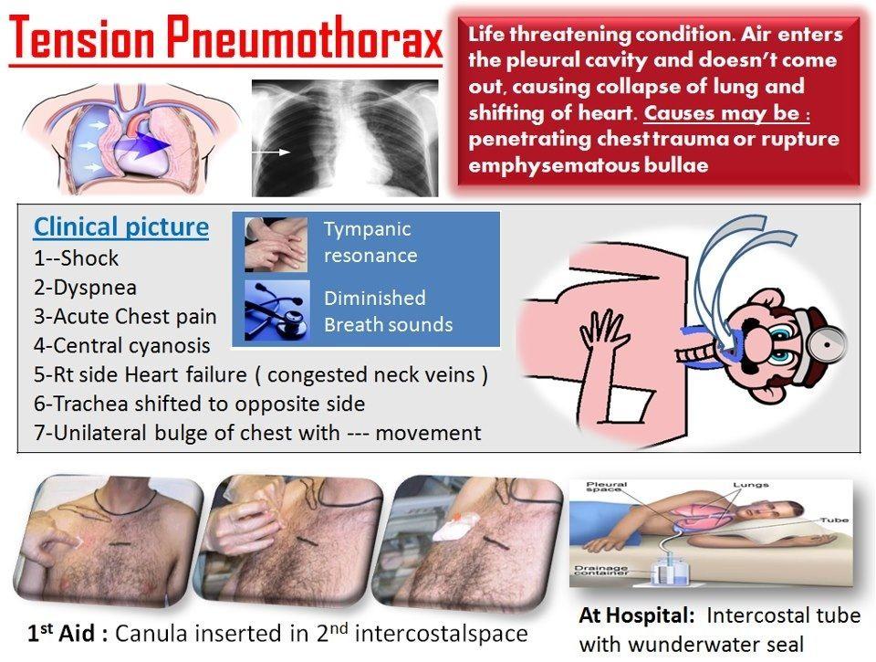 tension pneumothorax nursing - 960×725