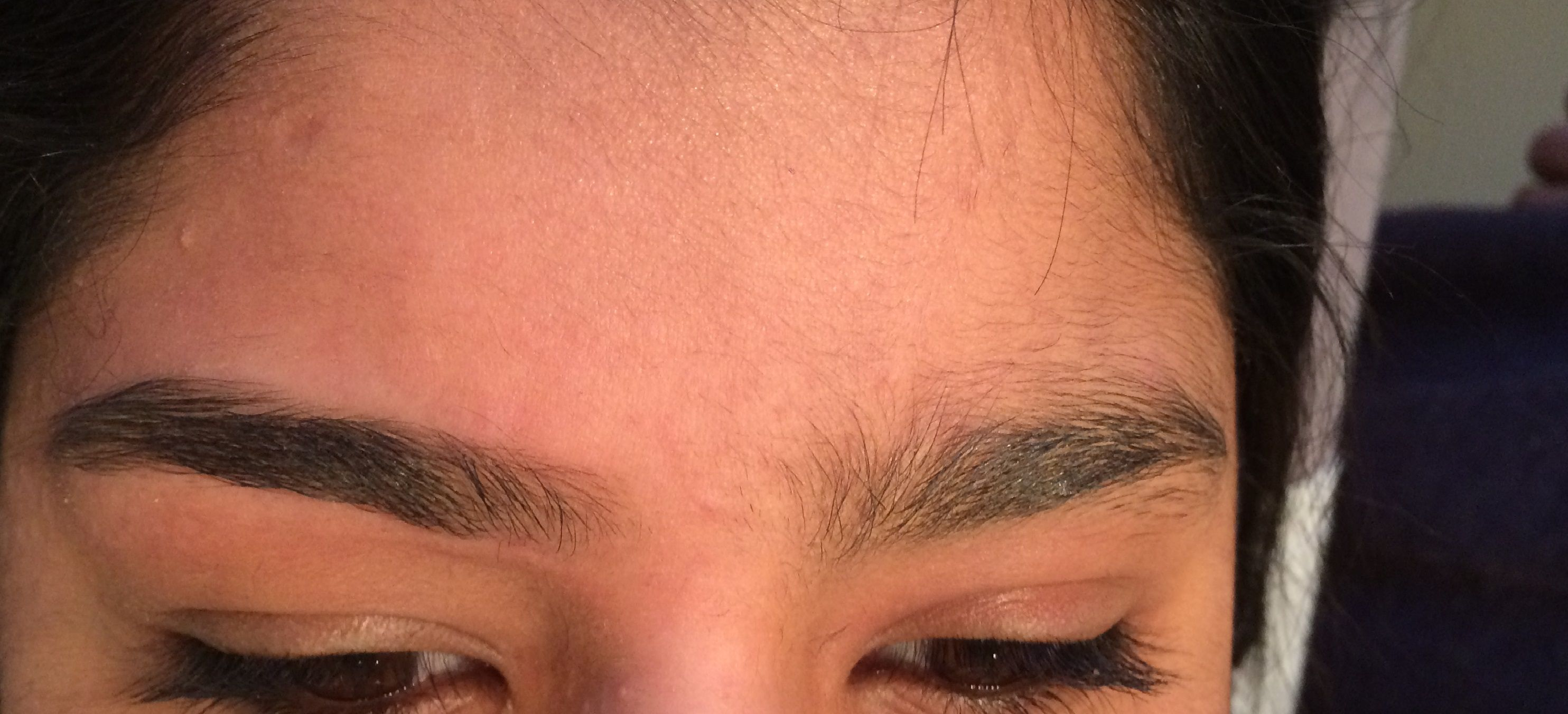 Before and after pictures of eyebrow threading  | Warts and Moles