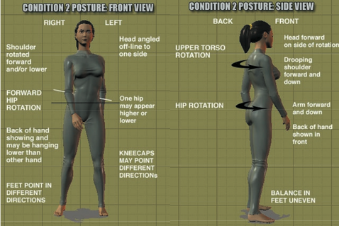 eliminating running injuries with egoscue  postures